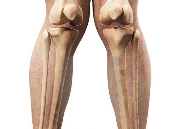 """Joelho valgo ou """"pernas de tesoura"""" é mais comum em mulheres"""