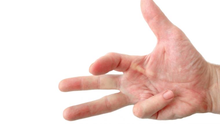 Você já ouviu falar de Dedo em Gatilho?