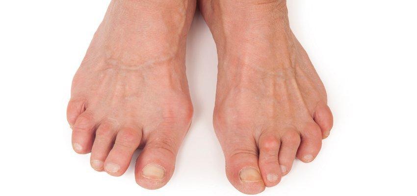 O que são os Dedos em Garra?