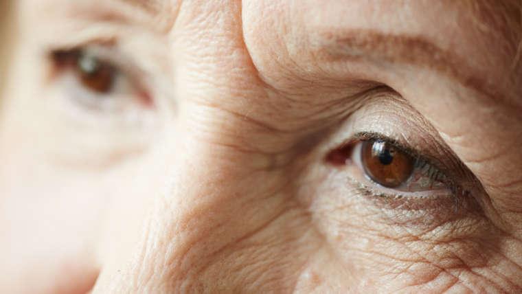 Sarcopenia: Tudo sobre a perda de massa muscular