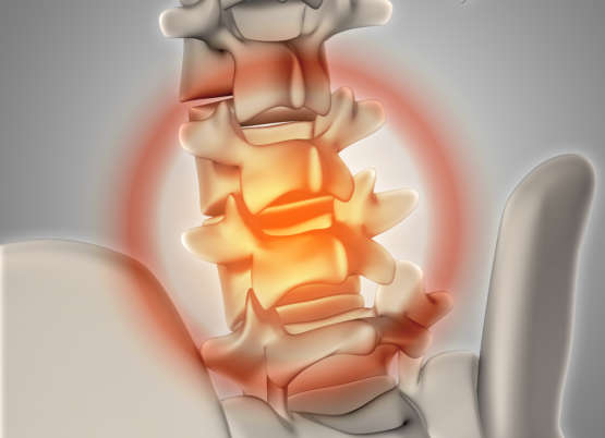 Espondilose: Saiba mais sobre Artrose na Coluna